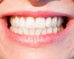 Diş Estetiği Hizmeti