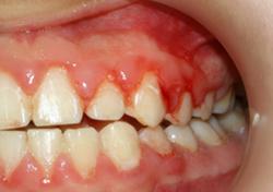Periodontoloji Hizmeti